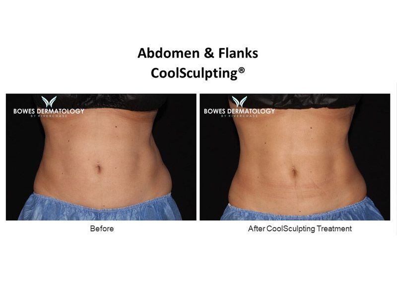 Abdomen and Flanks Clinical Results after treatment with CoolSculpting in Miami - Image #1