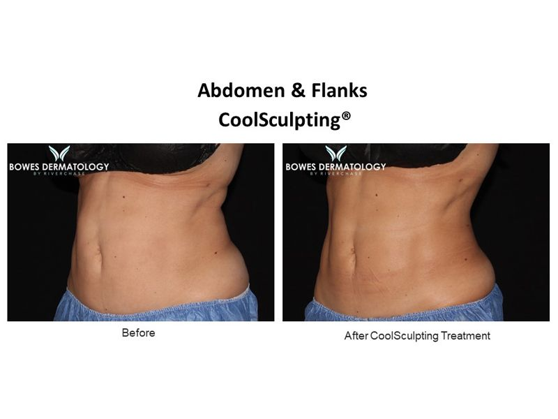 Abdomen and Flanks Clinical Results after treatment with CoolSculpting in Miami - Image #2