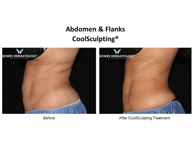 Abdomen and Flanks Clinical Results after treatment with CoolSculpting in Miami - Image#3