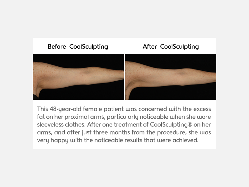 Arms Treated with CoolSculpting Miami
