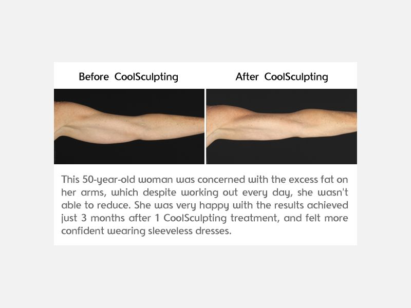 Before and After Photo of CoolSculpting Results