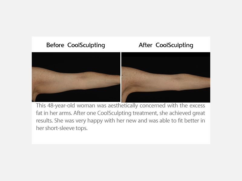 Arms Treated with CoolSculpting