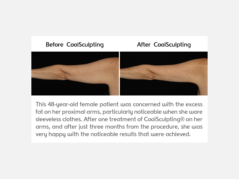 Arms Results After Treatment with CoolSculpting