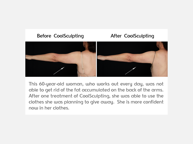 CoolSculpting Arms Before and After Photo