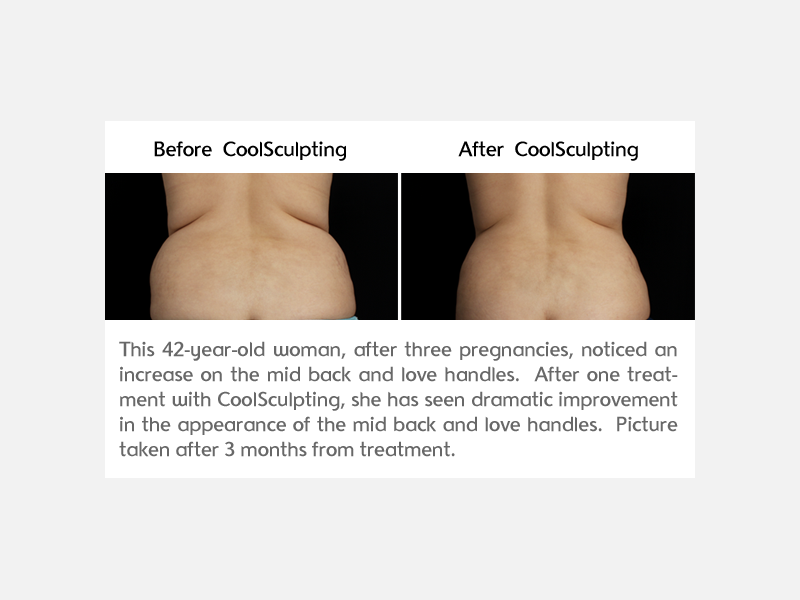 CoolSculpting Before and After Photo at Bowes Dermatology