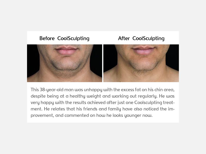 Chin Clinical Results