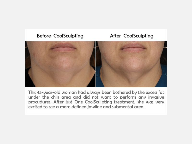 Chin Results after CoolSculpting Treatment