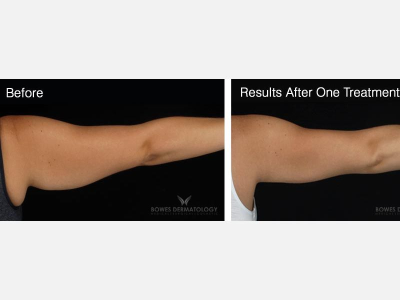 CoolSculpting for the Arms