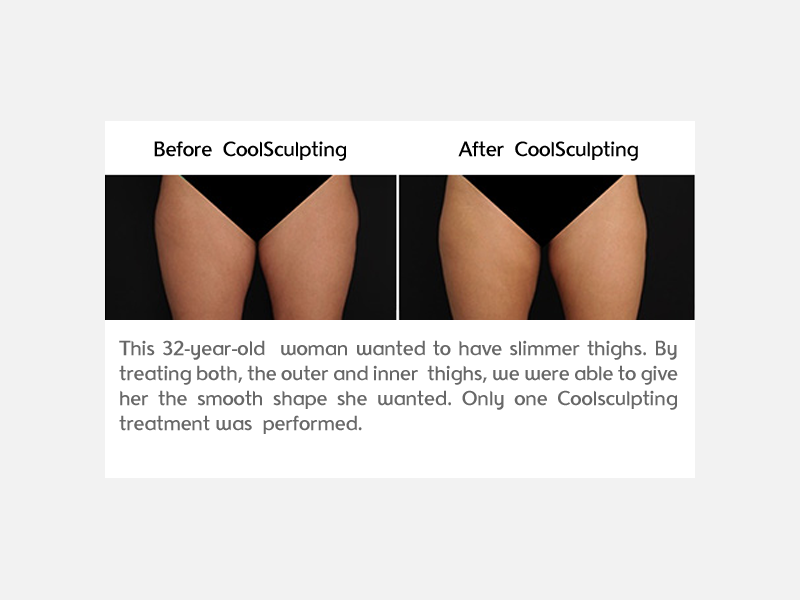 Thighs Clinical Results
