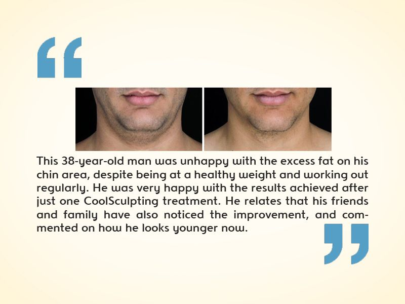 CoolSculpting for Men Testimonials