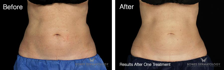 CoolSculpting Results at Bowes Dermatology in Miami