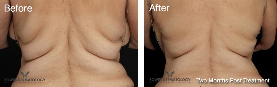 CoolSculpting Results for the Back