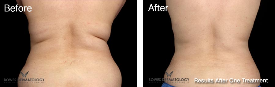 CoolSculpting Great Results