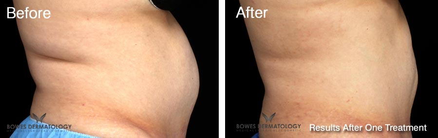 CoolSculpting Before and After Results in Miami
