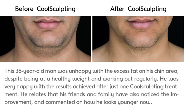 Chin Results Photo