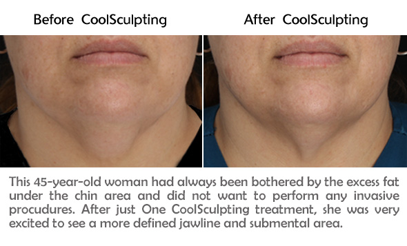 Chin Results #2