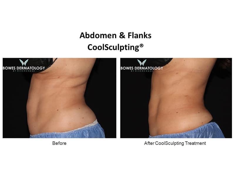 Abdomen Results #3