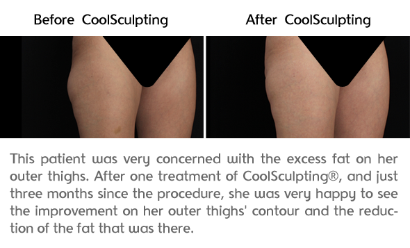 Thigh Results Photo 2