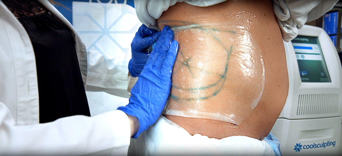 CoolSculpting Procedure by Riverchase