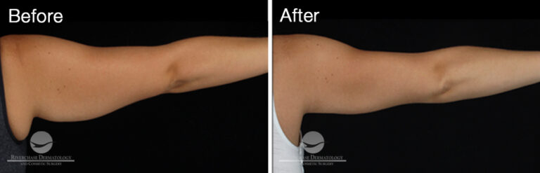 CoolSculpting Arms Results 1