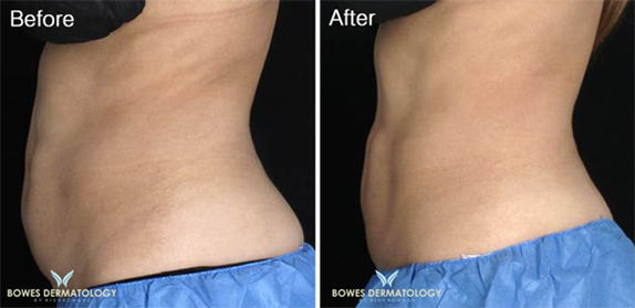 Abdomen treated with CoolsCulpting Photo 3