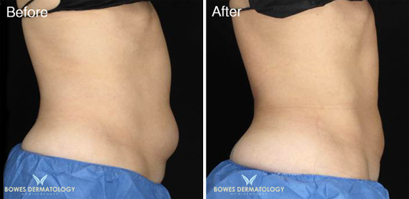 Abdomen treated with CoolsCulpting Photo 1