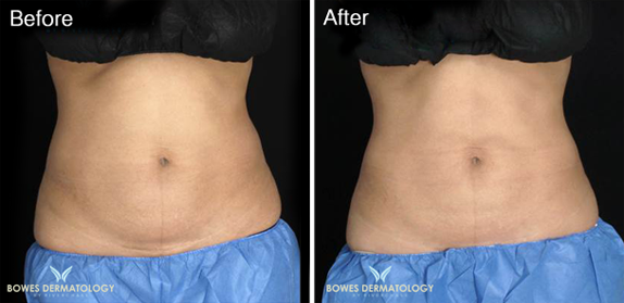 Abdomen treated with CoolsCulpting Photo 2